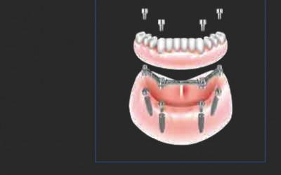 Rehabilitation of a fully edentulous Patient by immediate loading at chair-side: Just on 4 Technique and application of CAB Bar